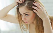 perte de cheveux femmes